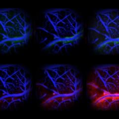 Detox deel 2: Zuiver je brein